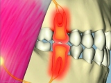 interference effects sensitive painful teeth