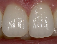 Healthy incisors