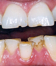 Incisors with severe notched wear