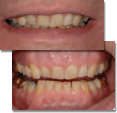 Treatment plan patient showing extensive tooth wear resulting in unhappiness with smile