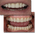 BiteFX helped patient understand occlusal disease, adopt comprehensive treatment.