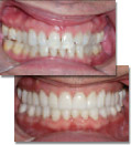 Before and after photos showing long term success of full mouth restoration with correct occlusal analysis and treatment planning.